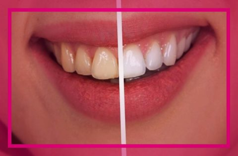 Best Whitening Toothpastes